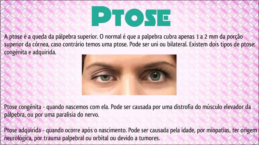 Ptose1-300x169.jpg