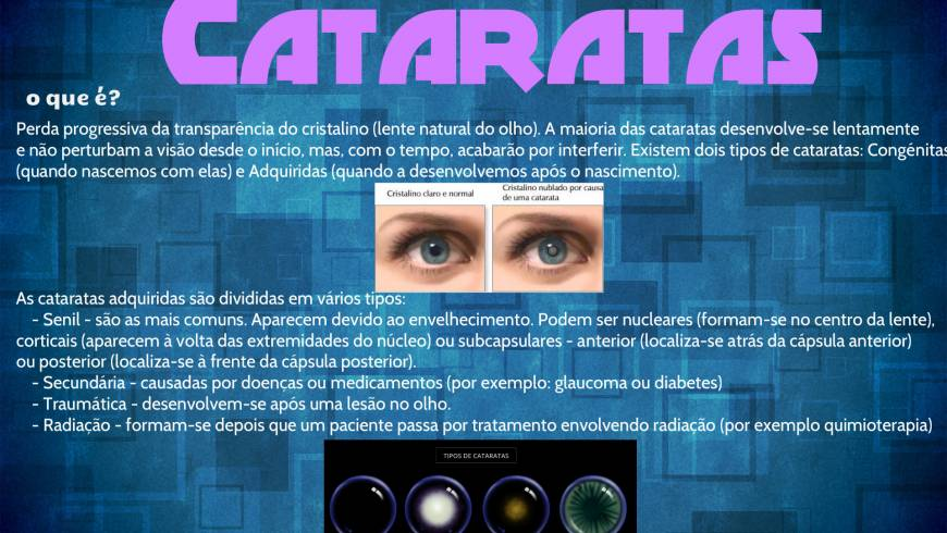 cataratas-2-300x188.jpg