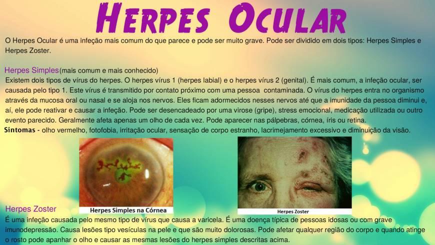 Herpes-Ocular2-300x169.jpg