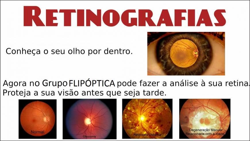 retinografias-300x169.jpg