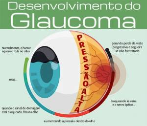 glaucoma diagrama1
