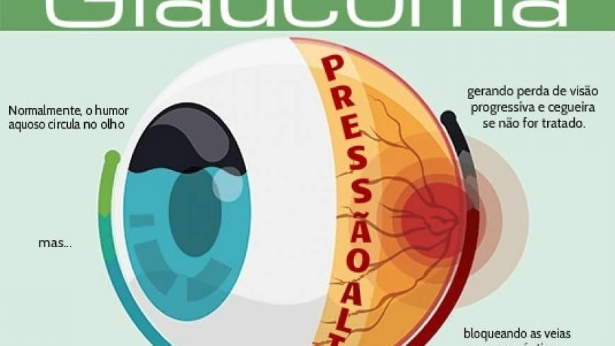 glaucoma-diagrama1-300x258.jpg
